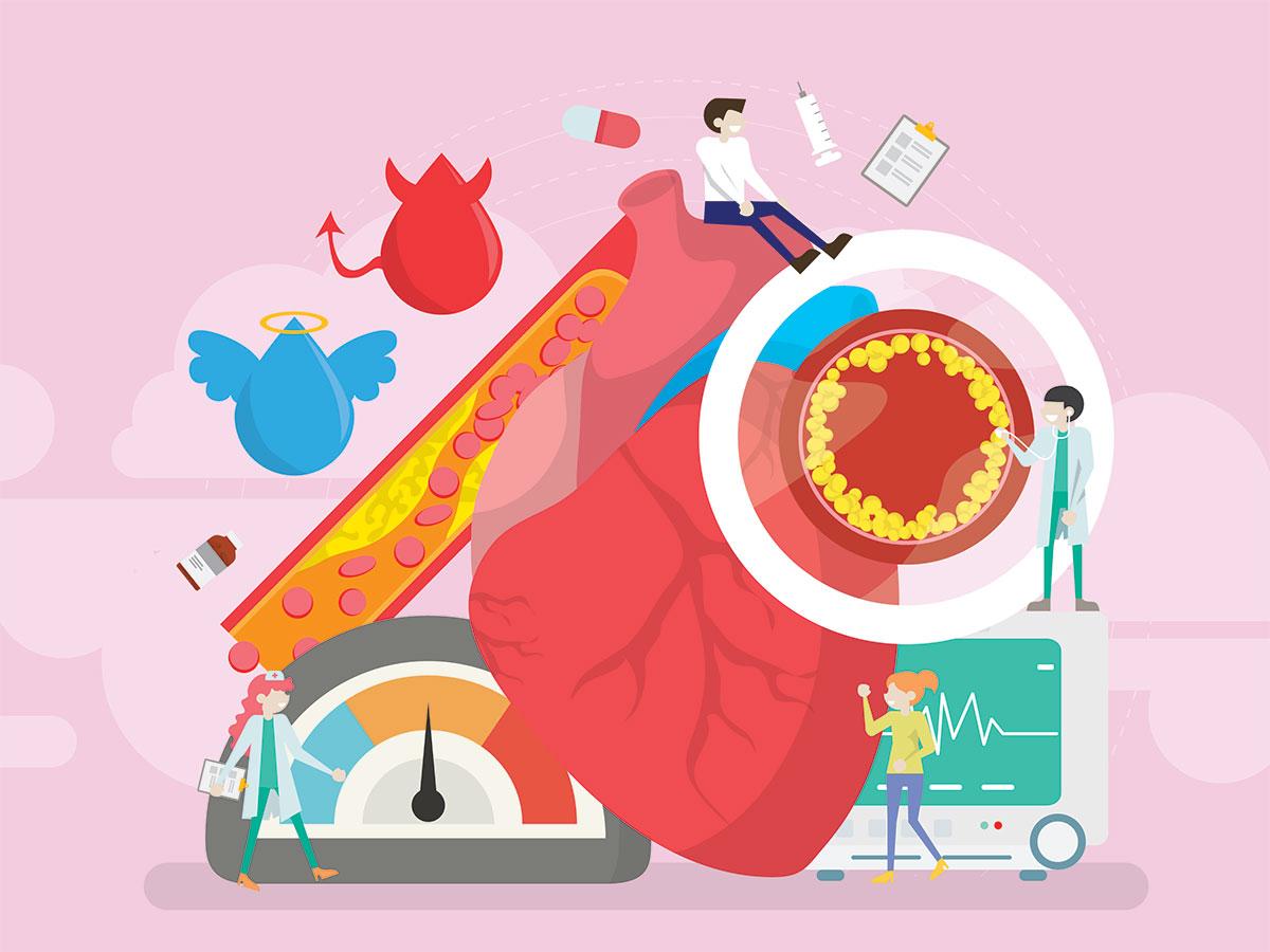Профилактика инфаркта миокарда: факторы риска, принципы диеты, советы по физической активности